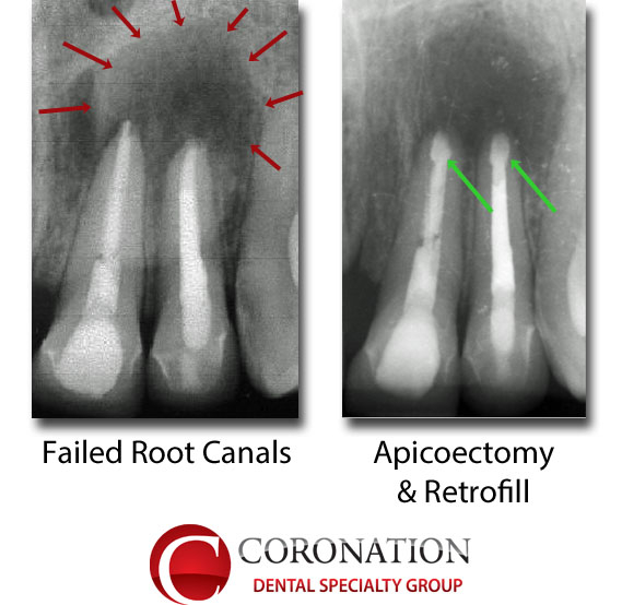 Failed root canal, with infection around the roots