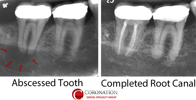 xray of tooth abscess