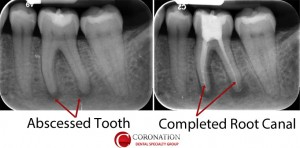 xray showing infection below tooth
