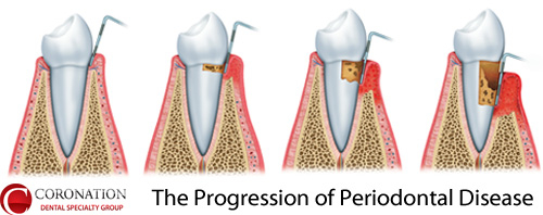 The Progression of Periodontal Disease
